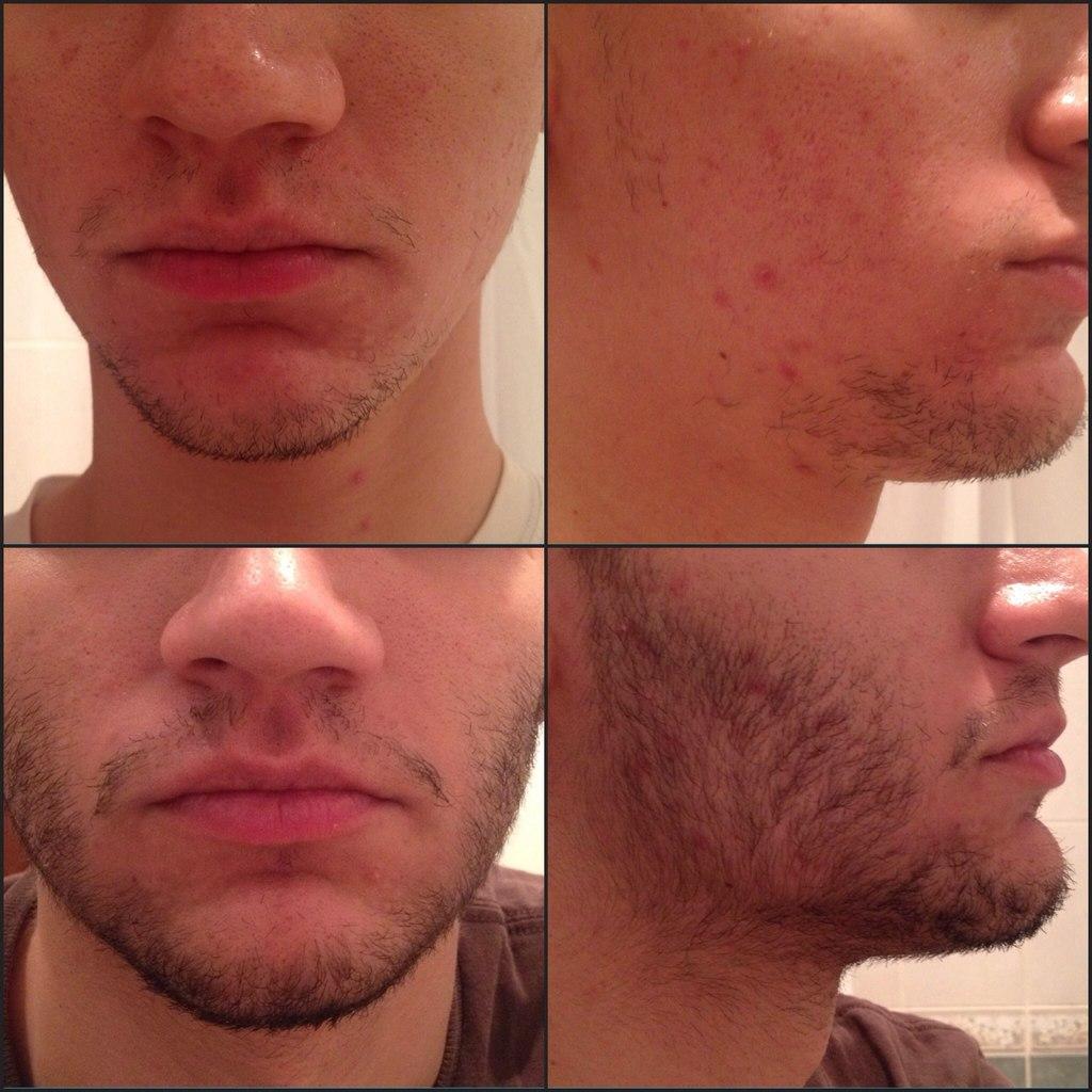 Как увеличить скорость роста волос на бороде