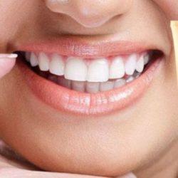 Зубная паста Denta Seal с эффектом пломбирования - развод или правда