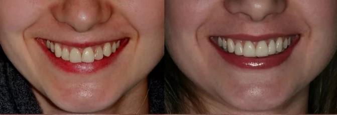 Wyniki użytkowania Denta Seal