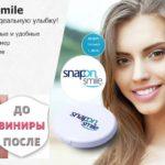 Съёмные виниры Snap-On Smile — мой отзыв