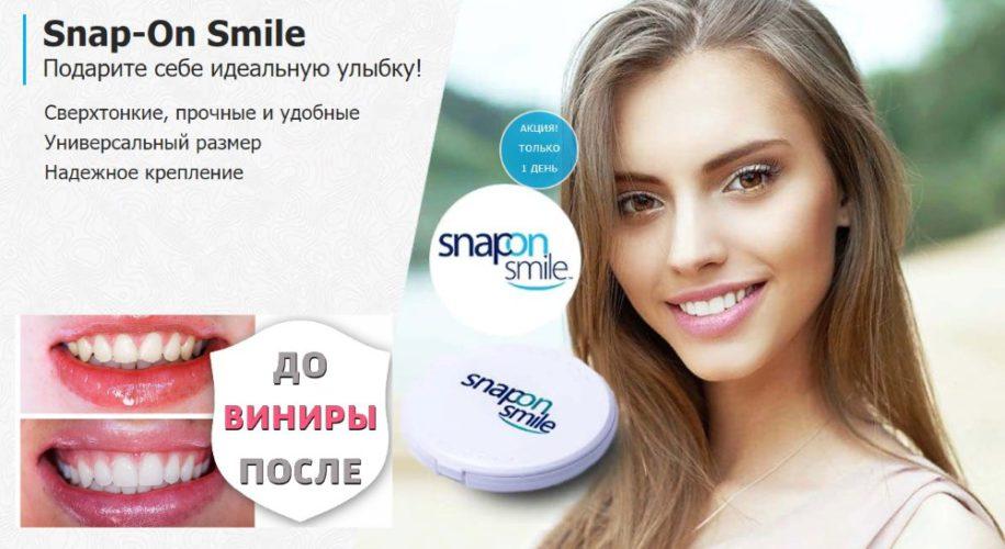 Съёмные виниры Snap-On Smile - мой отзыв