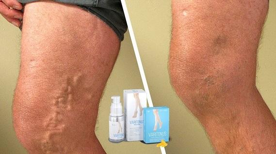 эффективное средство от варикоза на ногах